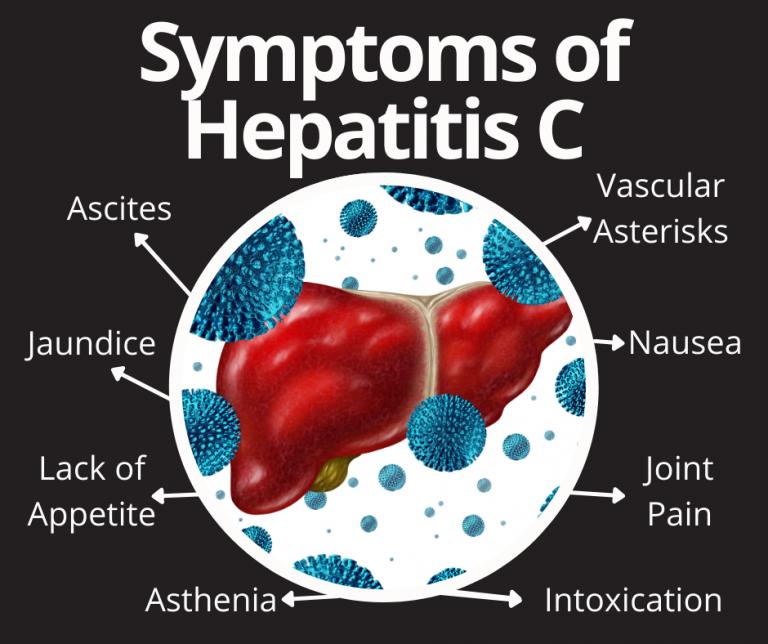 Symptoms of Hepatitis C